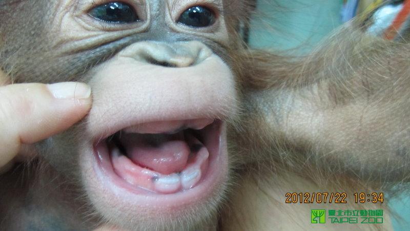 O teeth